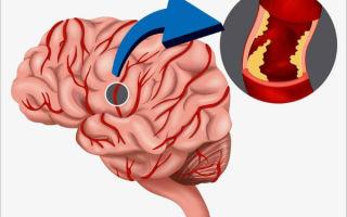 Симптомы и лечение ишемии головного мозга