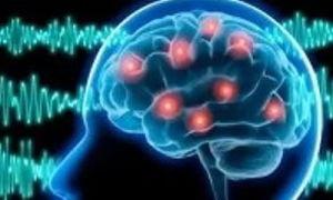 Альфа ритмы головного мозга