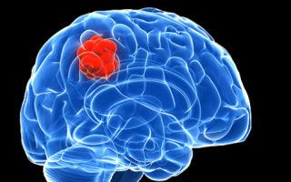 Опухоль мозга: признаки, симптомы и лечение