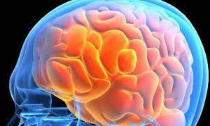 Симптомы нехватки и лечение кислородного голодания головного мозга