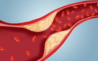 Лечение атеросклероза сосудов нижних конечностей