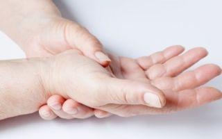 Классификация склеродермии: локализованная, ювенильная, генерализованная