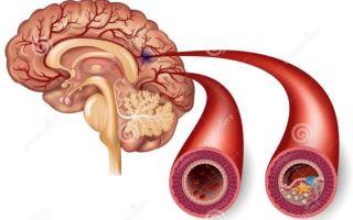 Симптомы слабых сосудов головного мозга