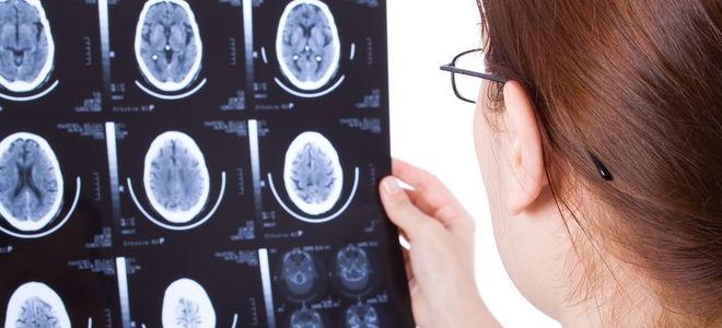 МРТ на рассеянный склероз