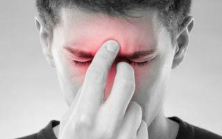 Симптомы: заложен нос, насморк, болит голова при глотании и нет температуры