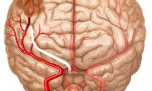 Субатрофия головного мозга