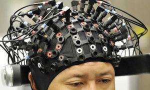 ЭЭГ головного мозга и расшифровка их показателей