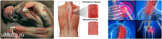 Диагностика и лечение фибромиалгии