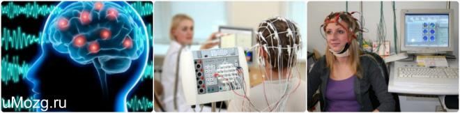 ЭЭГ головного мозга сделать