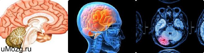 Водянка головного мозга лечение