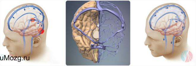 Венозный отток мозга