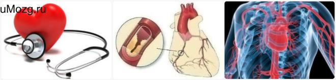 Как лечить ишемию сердца