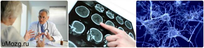 амиотрофический склероз