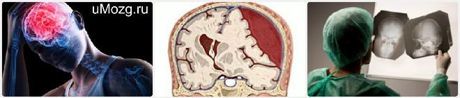 Субдуральная гематома: этиология