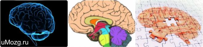 Белое вещество мозга