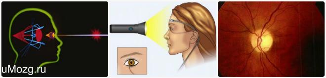 Преграда для зрения