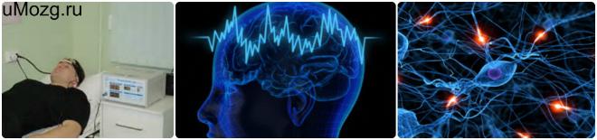 Сделать микрополяризацию мозга головы
