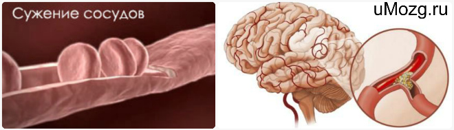 сужение сосудов мозга