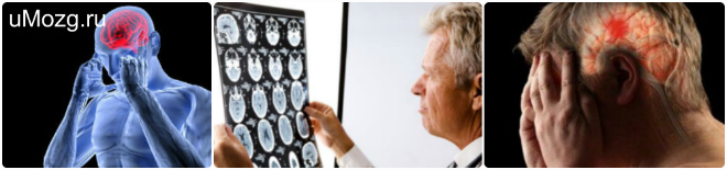 Органические поражения мозга головы