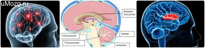 Желудочек мозга