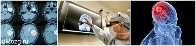 опухоль головного мозга лечение