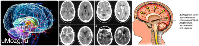Желудочек головного мозга