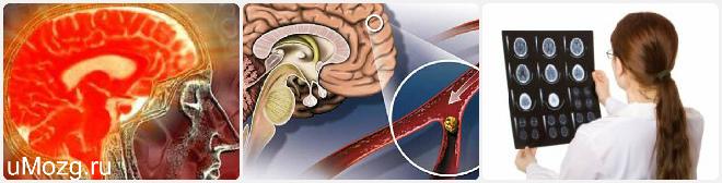Головной мозг и левое полушарие