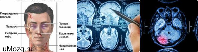 Ушиб головного мозга средней степени и его симптомы