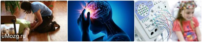 Виды эпилептических припадков