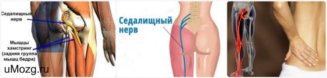 Лечение нервов в домашних условиях отзывы 755