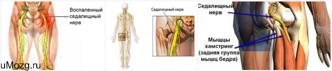 Симптомы и признаки защемления