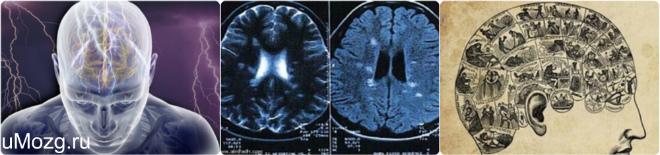 Белое вещество в головном мозге