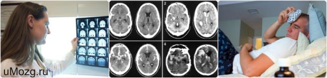 Признаки сотрясения мозга