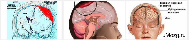 Субдуральная гематома