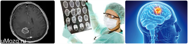 лечить опухоли головного мозга