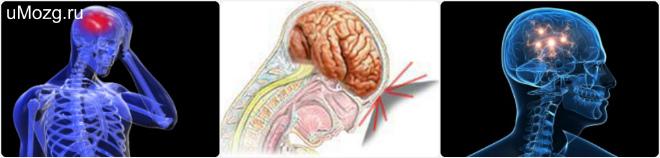 Признаки сотрясения головного мозга