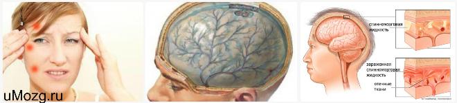 Диагностика серозного менингита