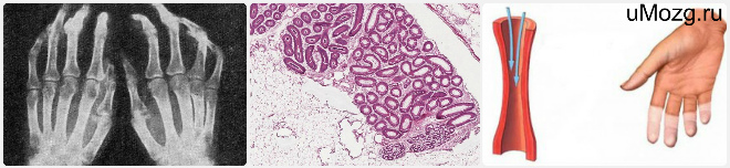 Виды системной склеродермии