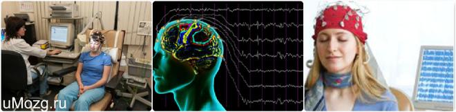 РЭГ мозга