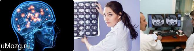 Лечение мозга в домашних условиях