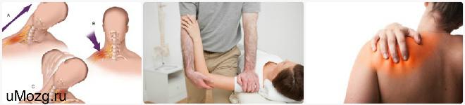 плексита плечевого сустава