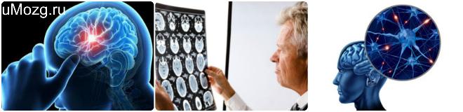 профилактика склероза