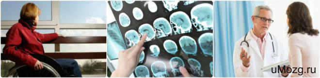 Народные способы лечения рассеянного склероза