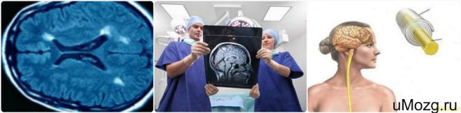 Сделать диагностику опухоли головного мозга