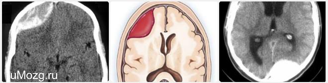 Субдурмальная гематома: лечение