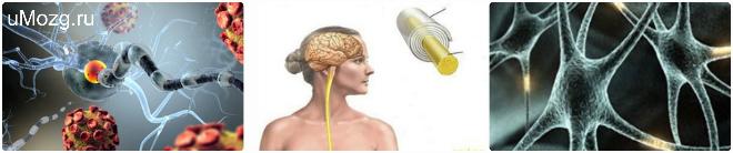 Виды рассеянного склероза