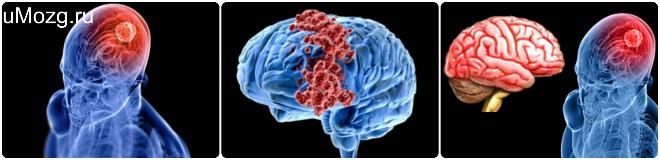 очаги опухоли в мозге