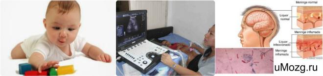 микроцефалия лечение у детей