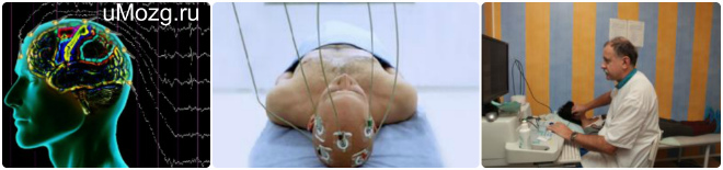 Микрополяризация мозга головы
