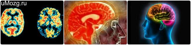 Атрофия человеческого мозга